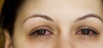 Allergisk øyebetennelse.
