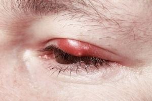 Man bør vente med kontaktlinser til en blepharitis ulcerosa infeksjon er over.