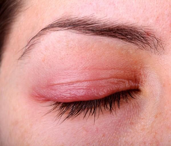 Kontaktlinser og lysfølsomhet
